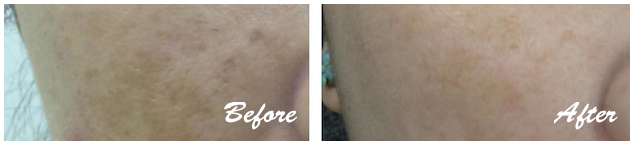 freckles, pigmentation, melasma