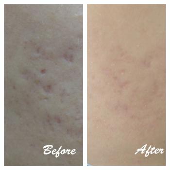 scar treatment, acne scar, keloid