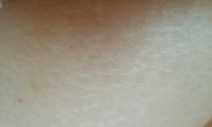 The Most Effective Stretch Mark Treatment in Malaysia