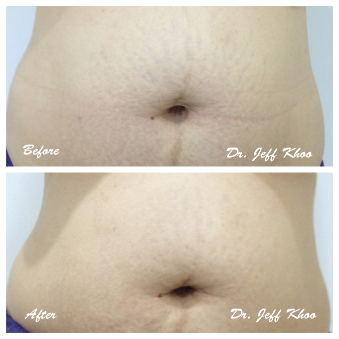 stretch mark, aesthetic clinic