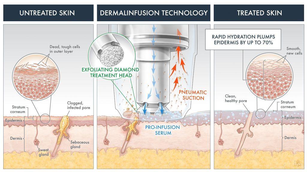 silkpeel-dermalinfusion