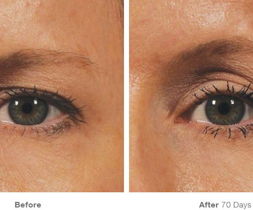 Before and After for Brow (Photo credit: ultherapy.com)