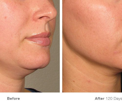 Before and After for Chin (Photo credit: ultherapy.com)