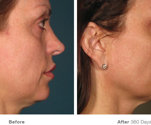 Before and After for Face (Photo credit: ultherapy.com)