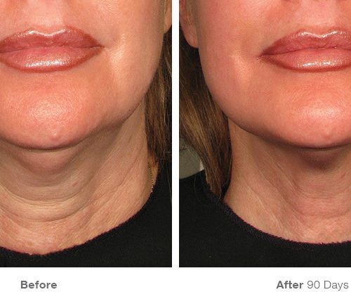 Before and After for Neck (Photo credit: ultherapy.com)